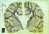 Agenesis of the corpus callosum (ACC)